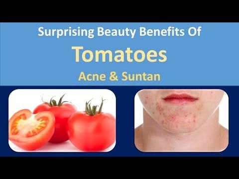 Surprising Beauty Benefits of Tomatoes | Acne & Suntan