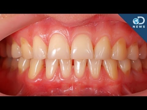 Why Can't We Regrow Teeth?