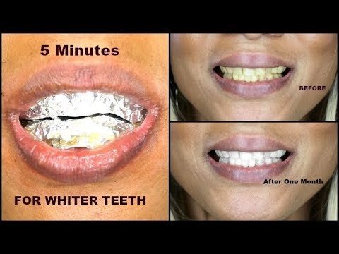 HOW TO GET REALLY WHITE TEETH | DIY TEETH WHITENING | Khichi Beauty