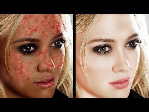 पिम्पल के दाग हटाने के उपाय - How To Remove Pimple Marks Overnight