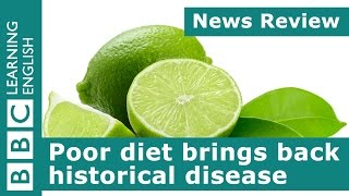 BBC News Review: Poor diet brings back historical disease