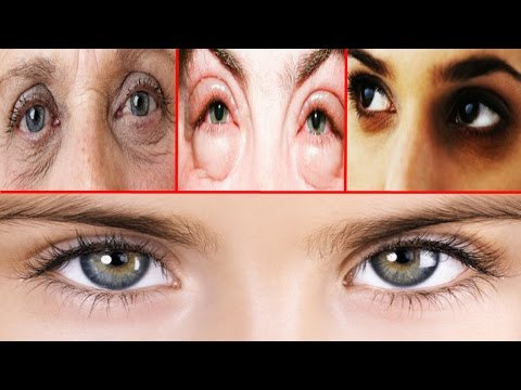 Remove Dark Circles, Wrinkles Eyes, Puffy Eyes || Homemade Eye Cream || 100% Effective Home Remedies
