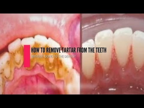 How To Remove The Tartar From The Teeth Without Going To The Dentist