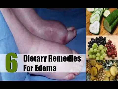 6 Excellent Dietary Remedies For Edema
