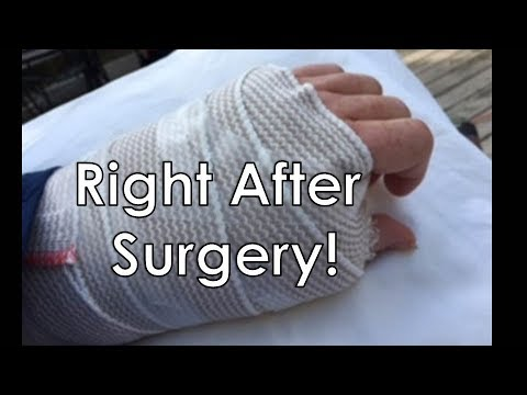 BASAL JOINT ARTHRITIS - AFTER SURGERY ON SURGERY DAY