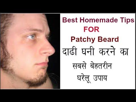 How To Fill Patchy Beard In Hindi || Homemade Tips || घनी दाढ़ी कैसे निकले ||