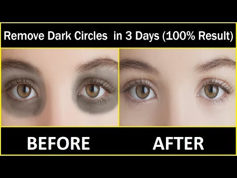 In 3 DAYS Remove Dark Circles Naturally and Permanently | (100% Results)