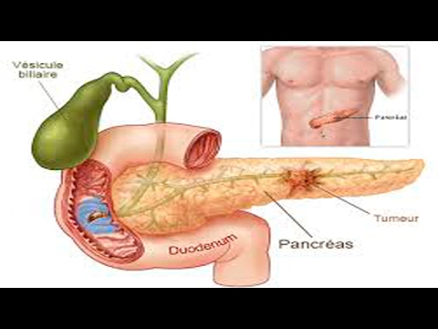 How to detoxify the pancreas     with natural remedies
