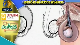 Varicocele in Men discussion with Dr  Raghavendra in Health