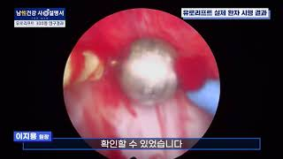 전립선비대증, 대한민국 남성 300명 치료 결과는?