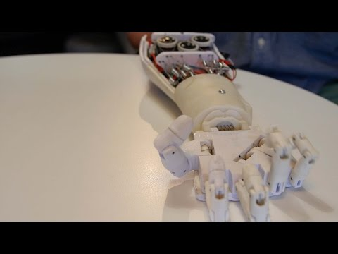 Robotics to aid amputees