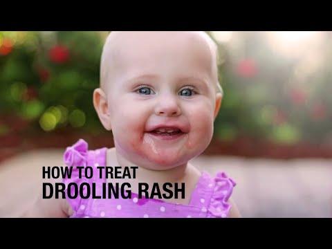 How to treat Drooling Rash