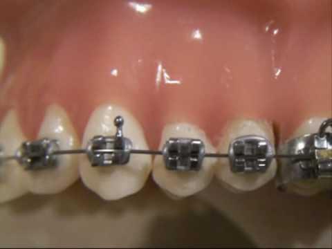 צחצוח שיניים ד