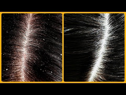 Magical cure for dandruff & hair fall /Home Remedies for Dandruff | Dandruff रूसी से छुटकारा