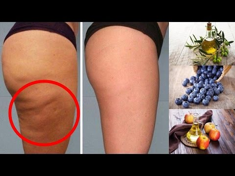 6 Foods To Help Eliminate Cellulite On Your Thighs