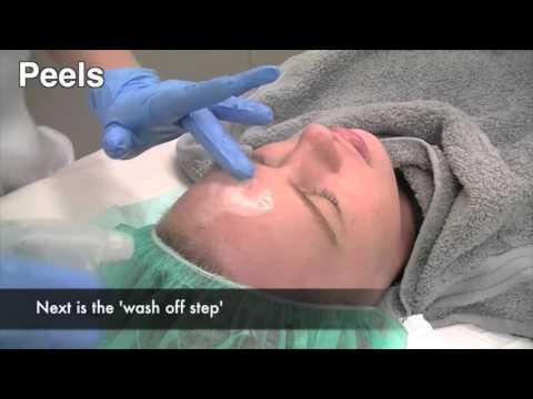 How to treat melasma pigmentation