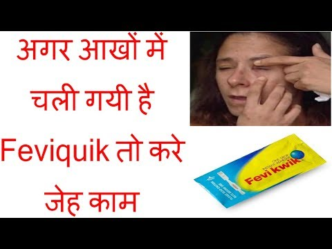 Remove Feviquick from Eyes || Super Glue in Eyes || Make Life Easy [ HINDI ]