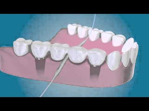 Clearwater FL Periodontist shares Clean around your dental implants (Bridge & Implant Floss)