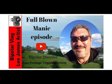 Bipolar Disorder Full Blown Manic Episode