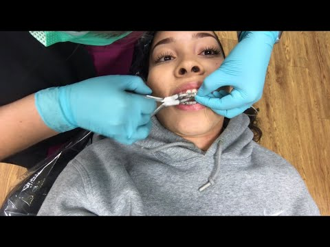 Come with me to get my Braces tightened!! |Damon Adult braces 2 month check in