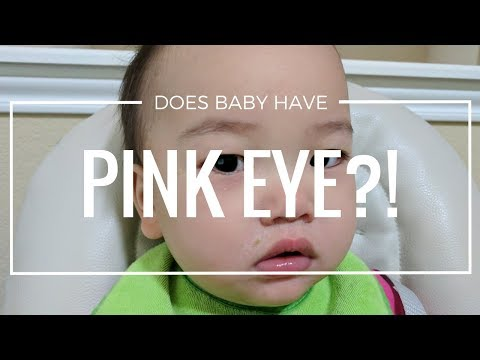 Vlog: Does Baby have Pink Eye?!  (August 5, 2017)