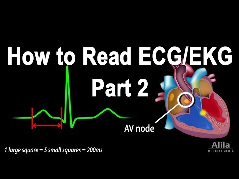 How to Read ECG/EKG, Part 2, Animation