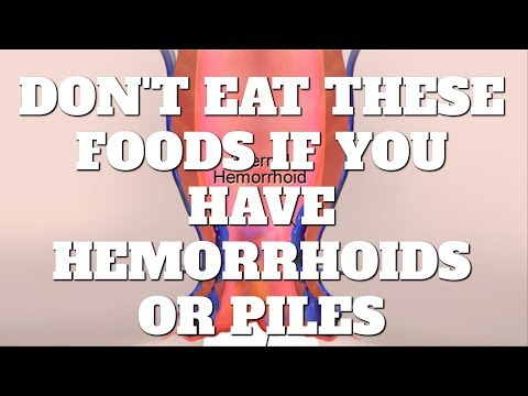 5 Foods You Should Not Eat If You Have Hemorrhoids or Piles