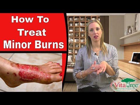 Treating Burns Using Home Remedies : How To Treat minor Burns - VitaLife Show Episode 125