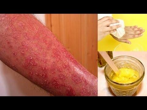 How to Get Rid Of Eczema Fast - Eczema Treatment