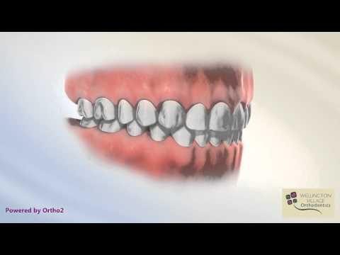 Normal Occlusion - Wellington Village Orthodontics