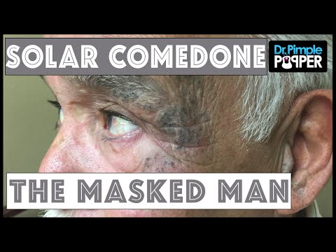 The Masked Man, Extensive Solar Comedones: Session II, Part 2 of 2