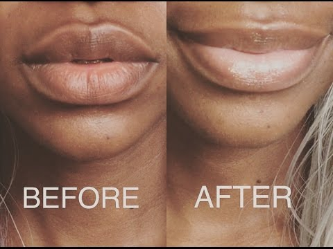 How To Get Your Dry And Cracked Lips Soft