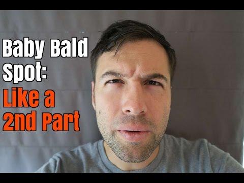 Baby Bald Spot: Like a 2nd Part