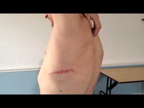 EFT Training: How I overcome back pain after surgery
