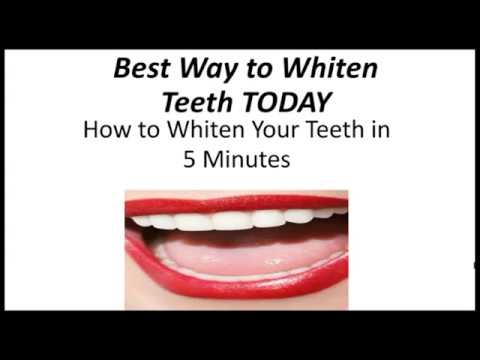 Best Way to Whiten Teeth Today | How to Whiten Your Teeth in 5 Minutes