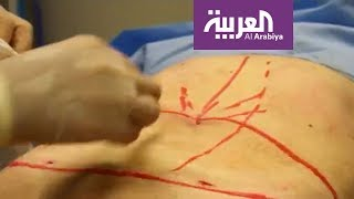 صباح العربية | جديد جراحات شد البطن بعد الولادة