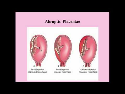 Late Pregnancy Bleeding - CRASH! Medical Review Series