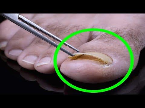 Toenail Fungus Treatment - Foot Fungus Home Remedy