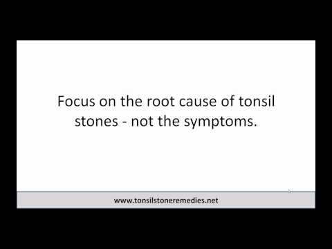 3 Easy Steps To Cure Tonsil Stones Free eBook