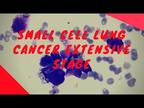 Small cell lung cancer extensive stage