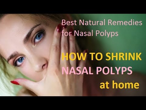 Best Natural Remedies for Nasal Polyps - HOW TO SHRINK NASAL POLYPS at home