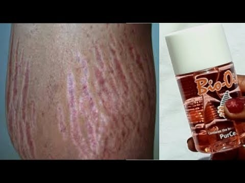 USE ONLY ONE OIL GET RID OF STRETCH MARKS FAST