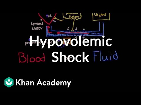 Hypovolemic shock | Circulatory System and Disease | NCLEX-RN | Khan Academy