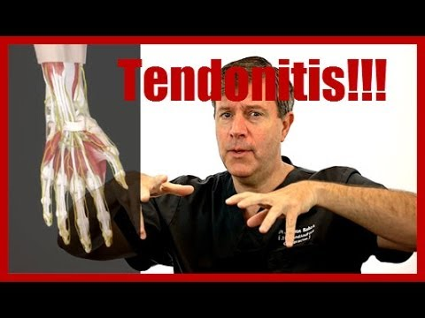 Do I Have Tendonitis In My Wrist