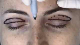 Markings For Upper Blepharoplasty
