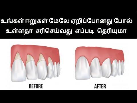 Natural Home Remedies for Teeth Gum diseases in Tamil | Teeth Health tips in Tamil