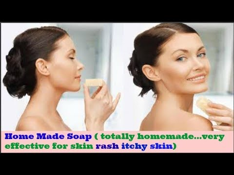 Homemade Natural Anti Acne Soap | For Rash ,Itchy Skin ,Redness |Very Effective