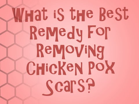 How To Remove Chicken Pox Scars. Remedies Revealed!