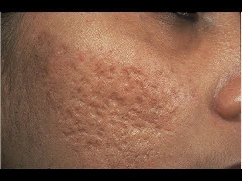 Acne Scars With Baking Soda Best And Easy Ways To Get Rid Of this home remedies