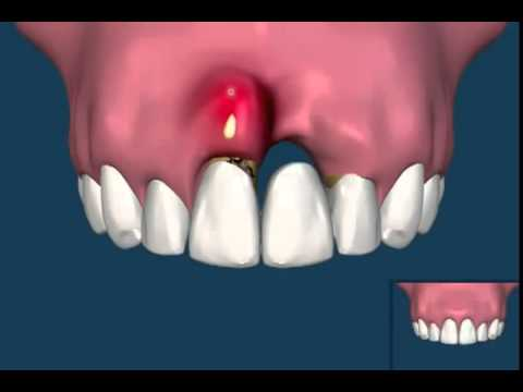 The Difference Between A Dental Bridge and Dental Implants